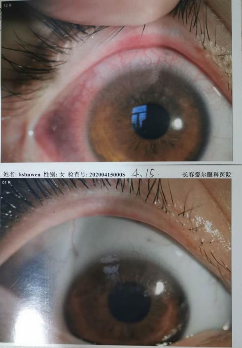 长春母女体验爱尔眼科干眼症治疗,7天时间还清晰视界