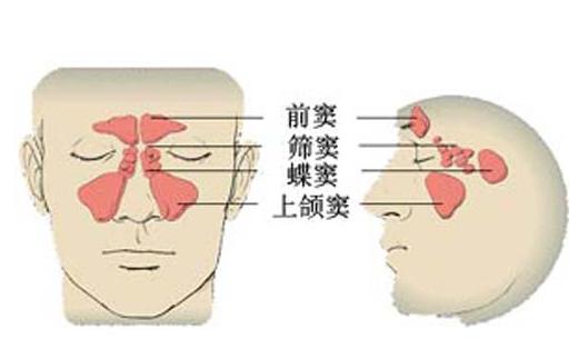 鼻炎总是反反复复?用清鼻堂有效果吗?