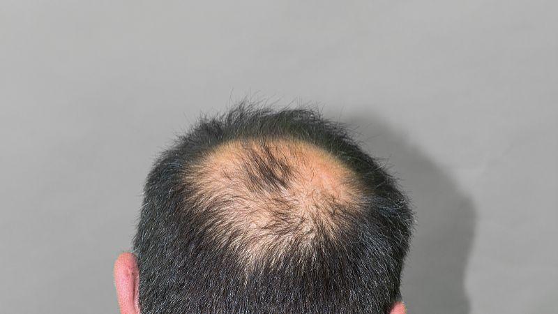 用什么方法治脱发秃顶 植司泉赐予我甘甜和幸福!