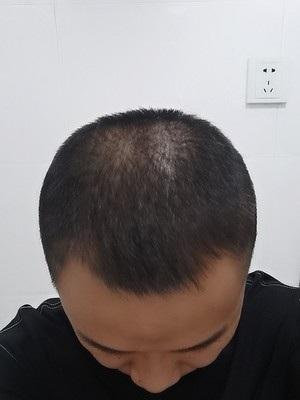 头发少怎样可以生发 植司泉传递男人阳刚之美
