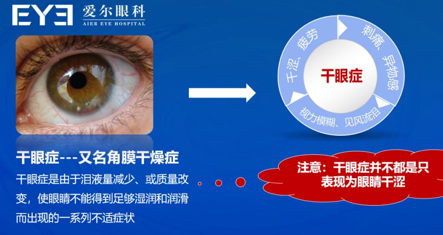 眼睛除螨虫、眼睛干燥、眼睛干痒,爱尔眼科为干眼症设计师解困