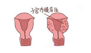 运动导致子宫内膜异位症该怎么办